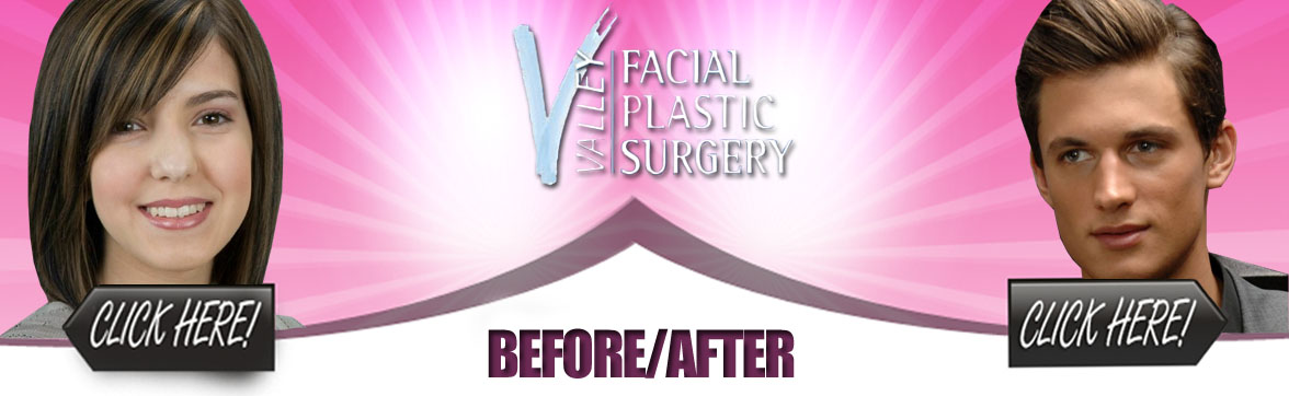 Plastic Surgery Before and After Photos